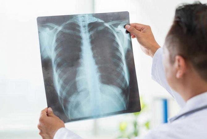 Картинки по запросу пневмония