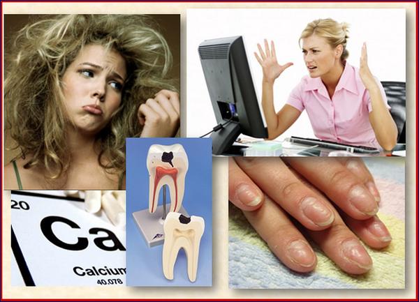 Симптомы дефицита кальция в организме » Qadin.Net ~ Первый национальный женский портал