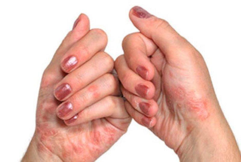 Псориатический артрит - признаки, причины, симптомы, лечение и профилактика - iDoctor.kz