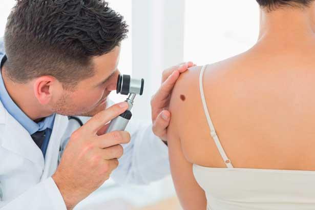 Меланома - современное лечение в клинике Ассута | Медицинский центр Ассута