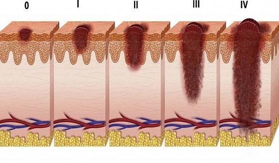 Меланома кожи - симптомы, диагностика и методы лечения | Daily Medical