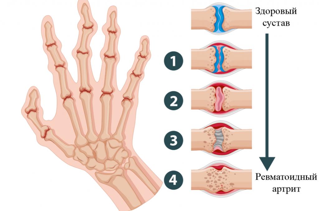 Ревматоидный артрит рук: лечение и симптомы - статьи от компании Еламед