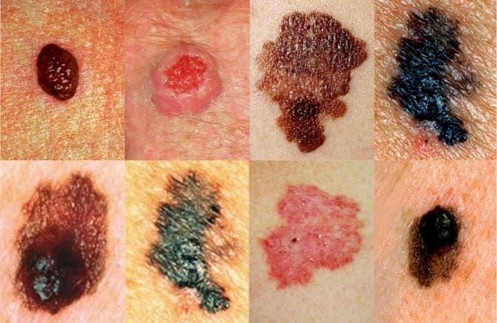 Меланома кожи: лечение и диагностика – Киев – Симптомы
