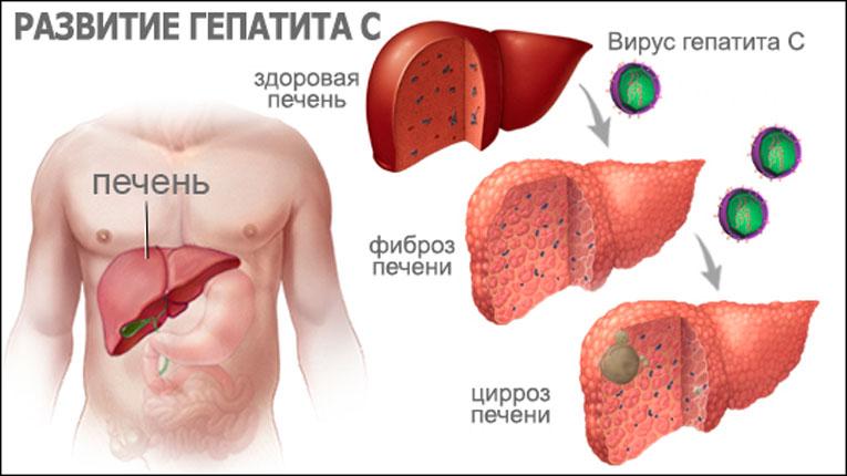 Гепатит С (Ц). Как выявить - необходимые анализы. Симптомы - как  проявляется гепатит С - «ГЕПАТИТ.РУ»